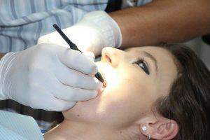 ציפוי שיניים Emax